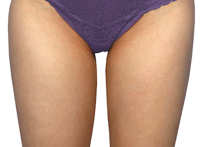 coolsculpting after inner thighs