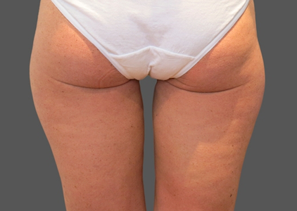 coolsculpting after outer thighs