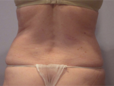 coolsculpting before flanks