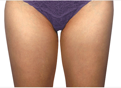 coolsculpting before inner thighs