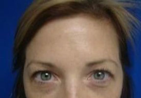 After forehead line Botox injections