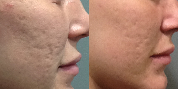 Microneedling Pinpoints Acne Scars and Other Skin Concerns