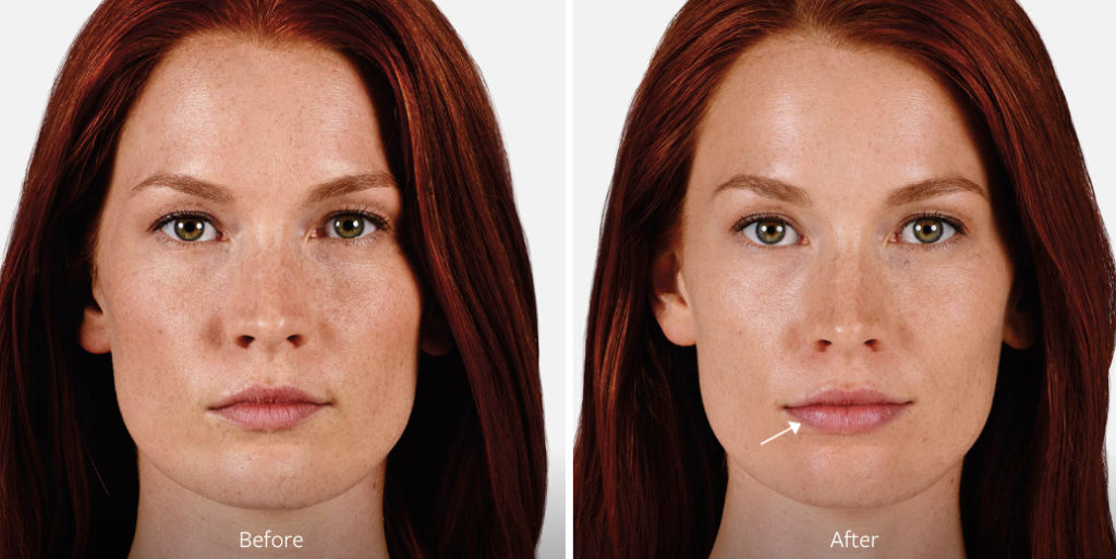 Juvederm Ultra 2, 3, 4 & XC Lip Fillers: Key Differences