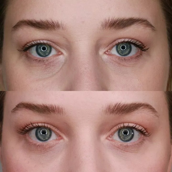 Under Eye Fillers for Dark Circles: Efficacy, Photos, Cost