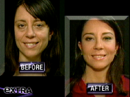 amy-tv-before-after