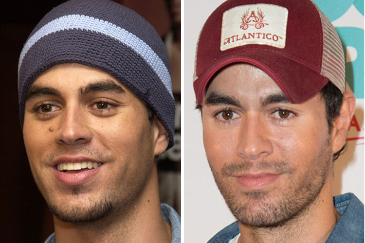 EnriqueIglesias Before & After