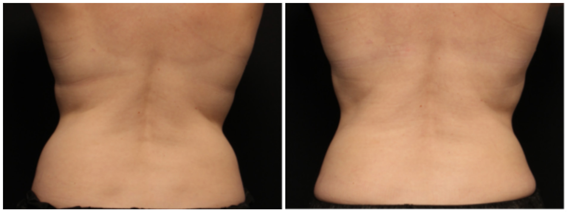 coolsculpting, before and after - back view