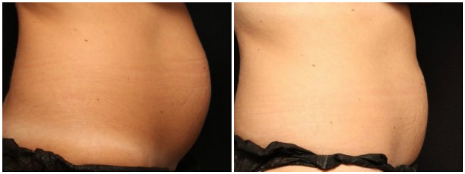coolsculpting, before and after - side view