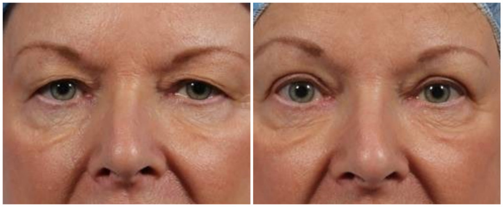 before and after, eyelid surgery