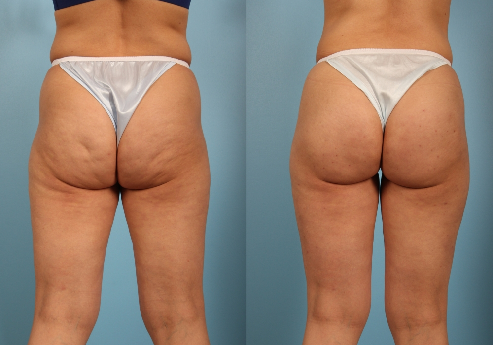 Cellulite On Thighs and Buttocks
