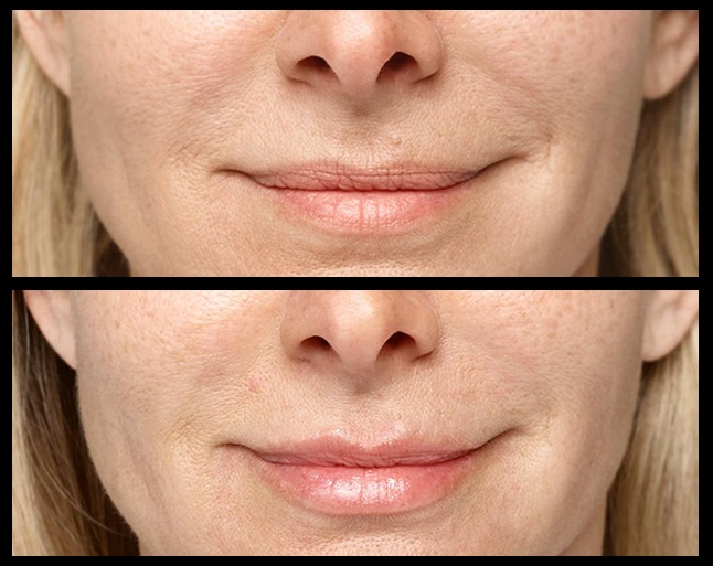 Before and after Resthylane Silk lip filler injections. Credits: Galderma
