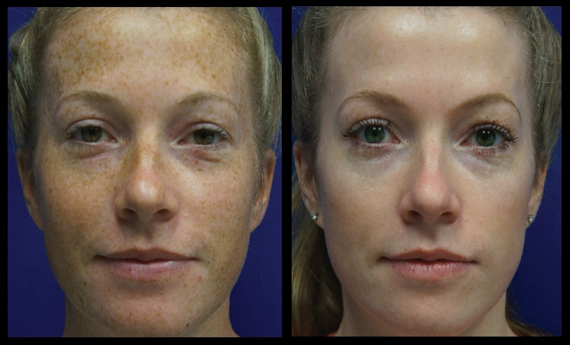 freckle treatment before after