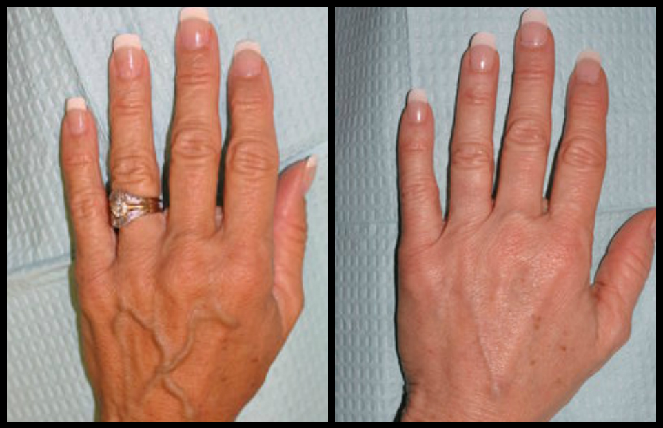 hand sclerotherapy