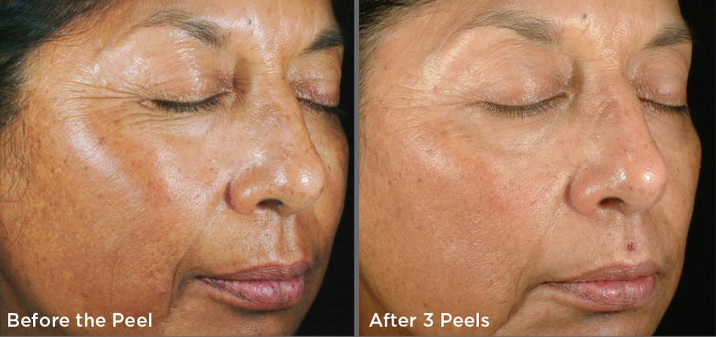 Types of Chemical Peels: Before & After