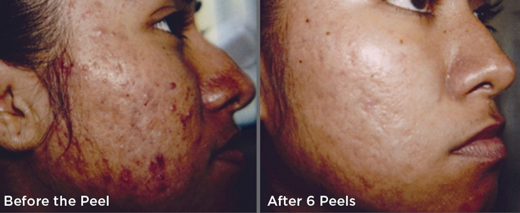 skinmedica-before-after-2