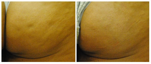 cellulite before and after cellfina