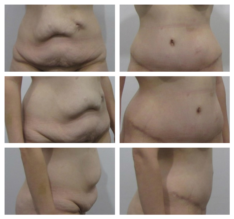 body contouring for excess skin