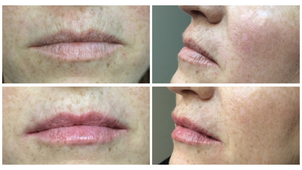 Before and immediately after Volbella injections. Photos courtesy of Dr. J. J. Wendel Plastic Surgery